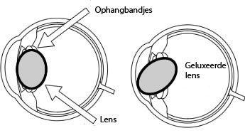 lensluxatie