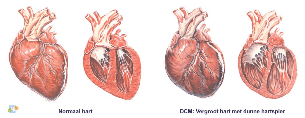 hypertrofische cardiomyopathie klachten